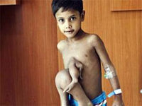 In India, the boy removed the extra limbs. 246809.jpeg